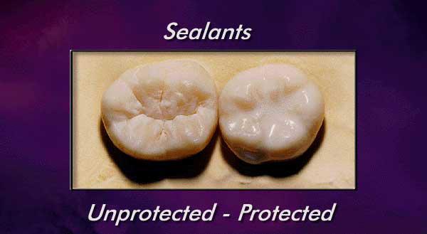 Dental-Sealants.jpg