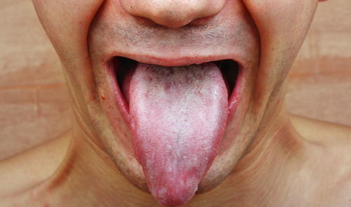There are two ways to check to see if Candida might be an issue at home, but still follow up with your doc to get a lab workup.   A thick white substance on your tongue is one sign.   Another is to spit in a cup of water first thing in the morning.  If long tentacles form under the saliva, this too can be a sign of yeast.