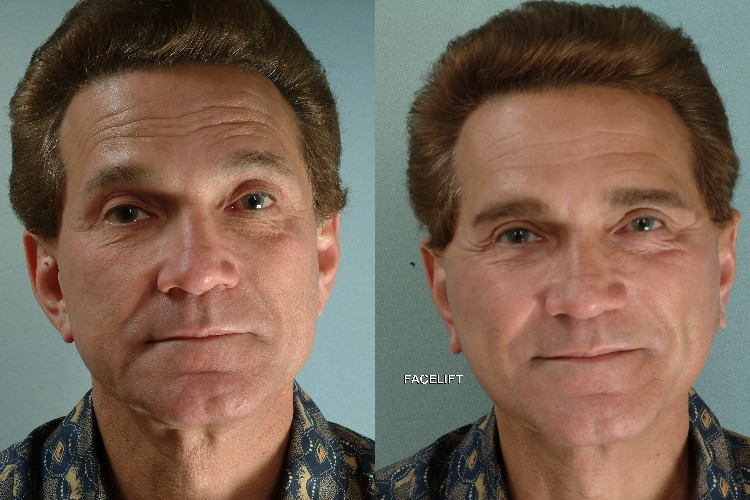 Facelift in fort collins for men.jpg