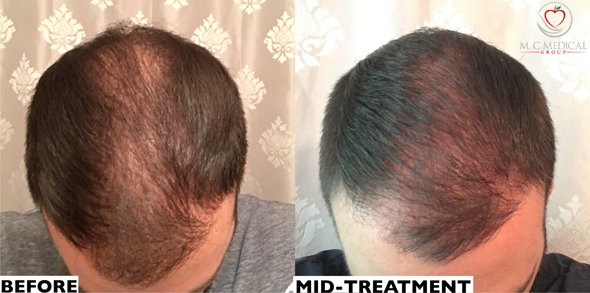 Patient displayed is currently mid-treatment with 4 treatments in 4 months -
