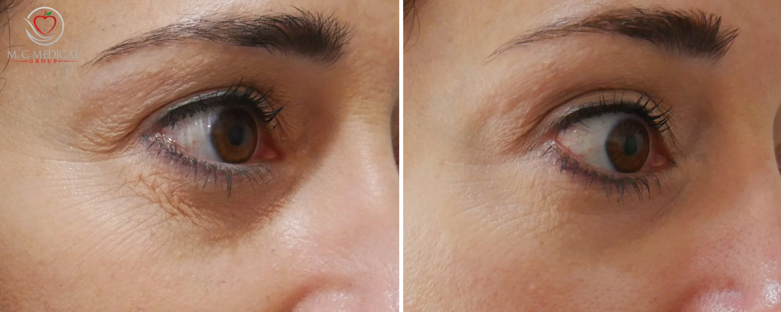 Patient's results are shown after one month of PRP treatment. (topical, no injections)