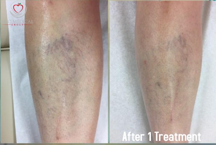 laser-vein-treatment.png