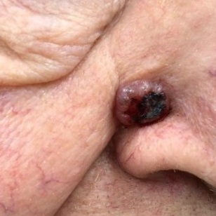 A basal cell carcinoma.