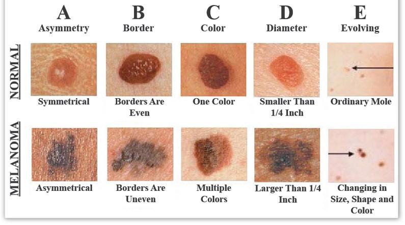 skin-cancer-chart.jpg