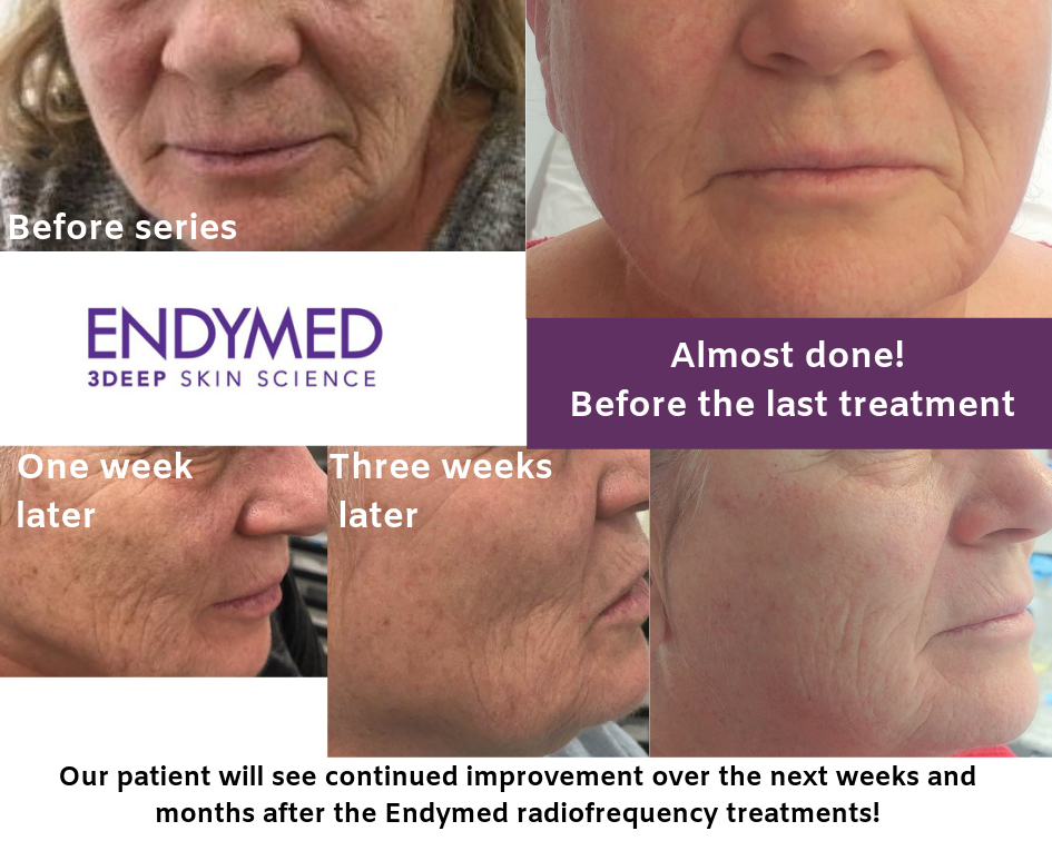 Skin tightening with the Endymed system is effective and easy! Add an Intensif (TM) treatment with the purchase of a radiofrequency treatment package for AMAZING results, and  at no additional cost!!     Book now!