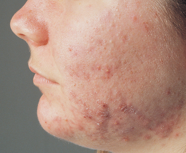 acne.fw.png