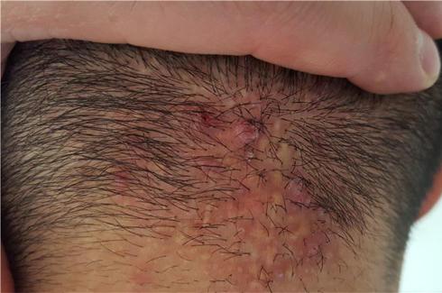 folliculitis.fw.png