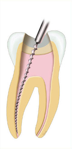 Root Canals   Should a tooth suffer trauma where the nerve dies, or if decay extends into the center (nerve) of the tooth, then a root canal may be necessary to clean out the bacteria that has traveled through the nerve.  People may have heard horror stories about root canals, but today's modern anesthetics and procedures have reduced the procedure to relatively painless