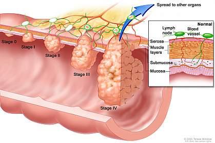 Colon Cancer Awareness 3_North Country Gastroenterology.jpg