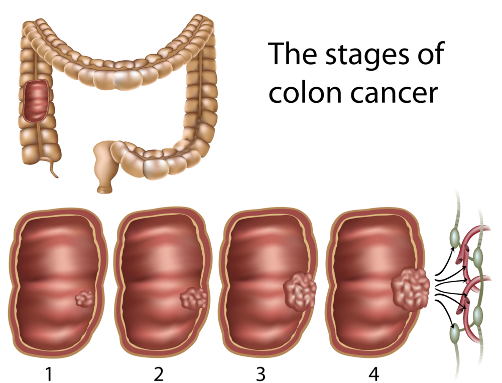 cancer colon quimioterapia paliativa)