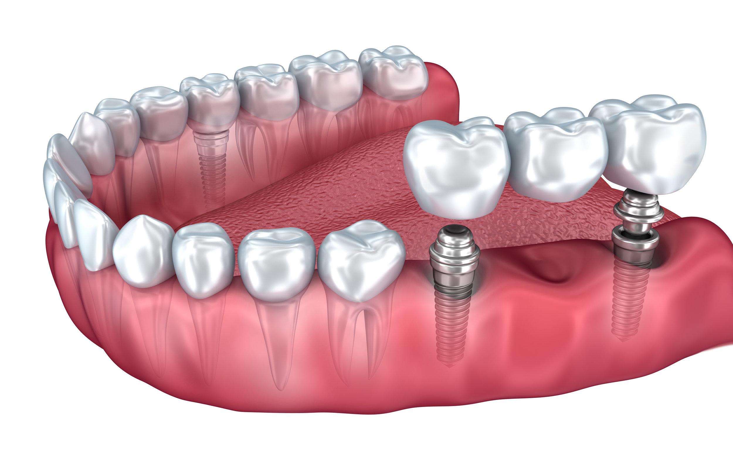Tooth Repair Dentist