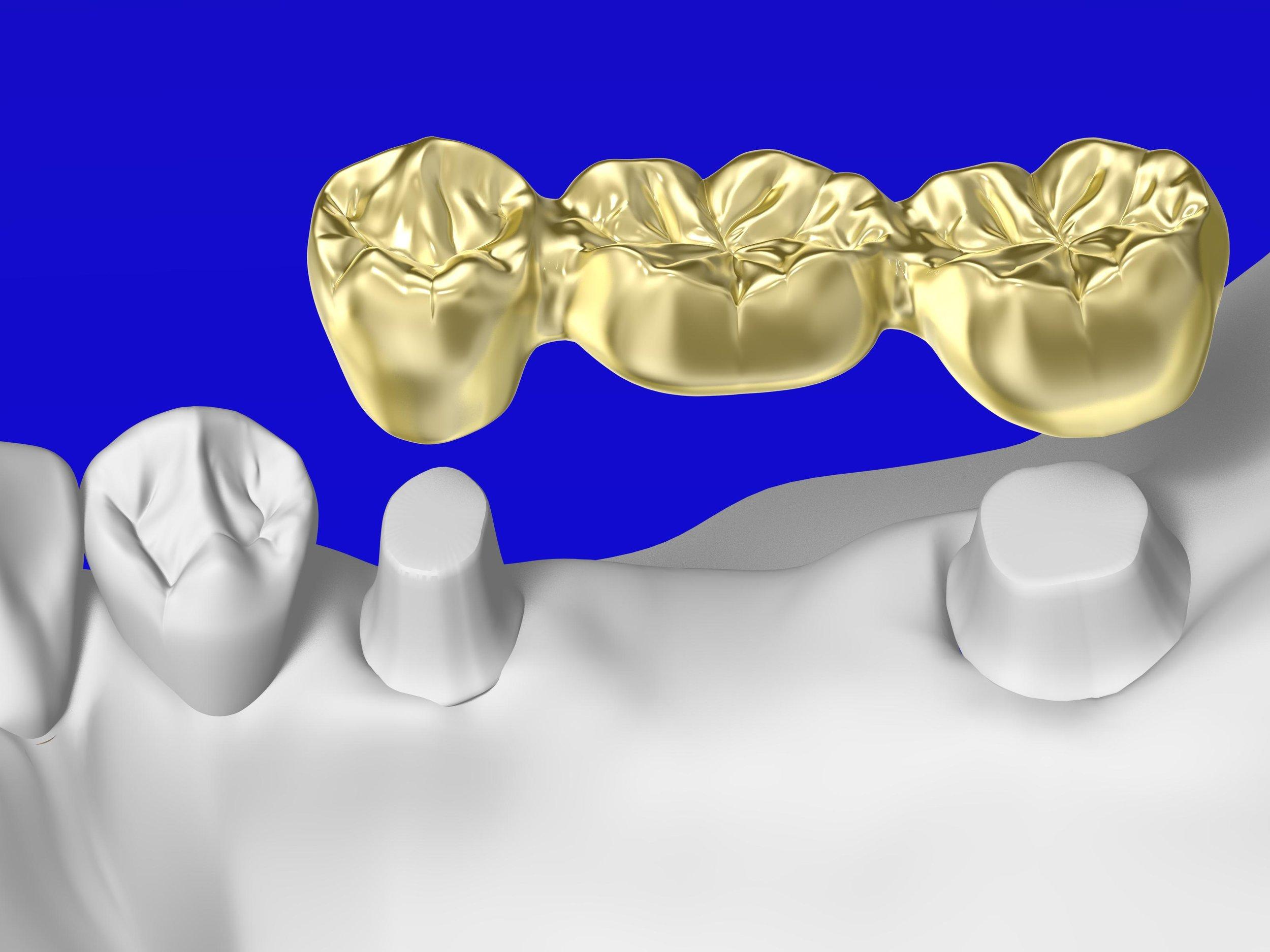 Bridges Banyo Dental