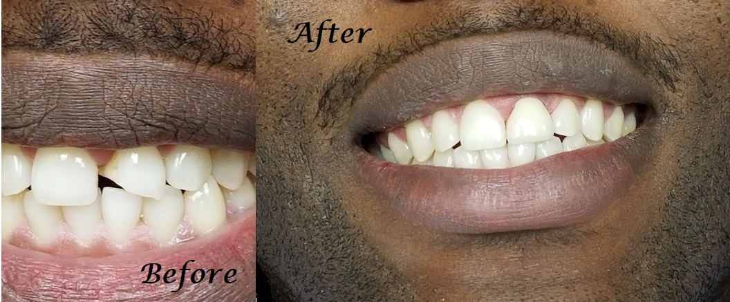 Single Crown - Front tooth fracture repaired with a crown.