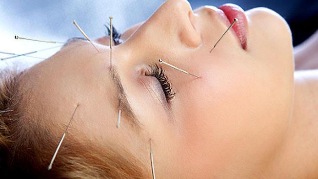 Facial Acupuncture Hamilton Acupuncture Binbrook Facial Rejuvenation Acupuncture