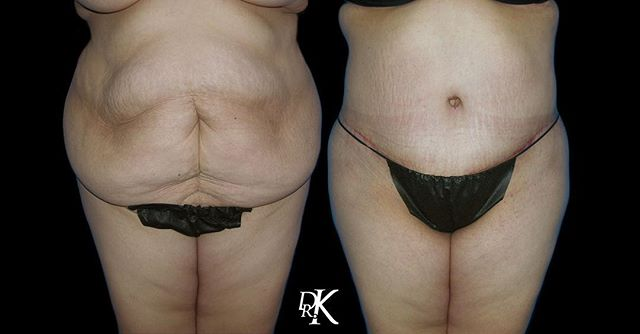 You don't need a miracle, you just need Dr. K 😍🙌🏼 Dr. K performed a Tummy Tuck procedure for this patient. She was unhappy with excess fat and skin that was making her every day life, very uncomfortable. One thing to notice his how amazing the belly button reconstruction was done 🎉 Liposuction is another component of the Tummy Tuck procedure, which helps remove those stubborn fat area. 🔥