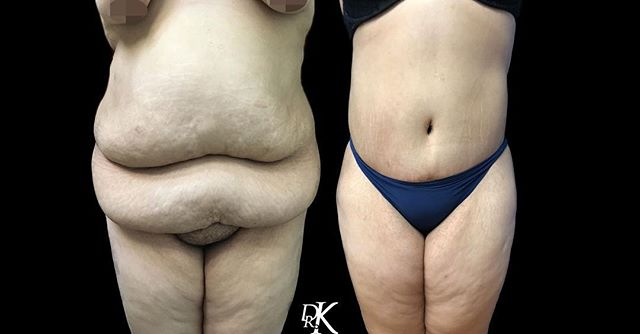 Massive before and after action, coming your way this Thursday!⁣⠀ As you can see, a tummy tuck procedure can completely change someone physical and mental health. After removing excess fat and skin this patient has regained her life back, exercise and a healthy life style come natural to her. We truly could be happier for this patient and are excited to see how grateful she is for Dr. K's work!⁣