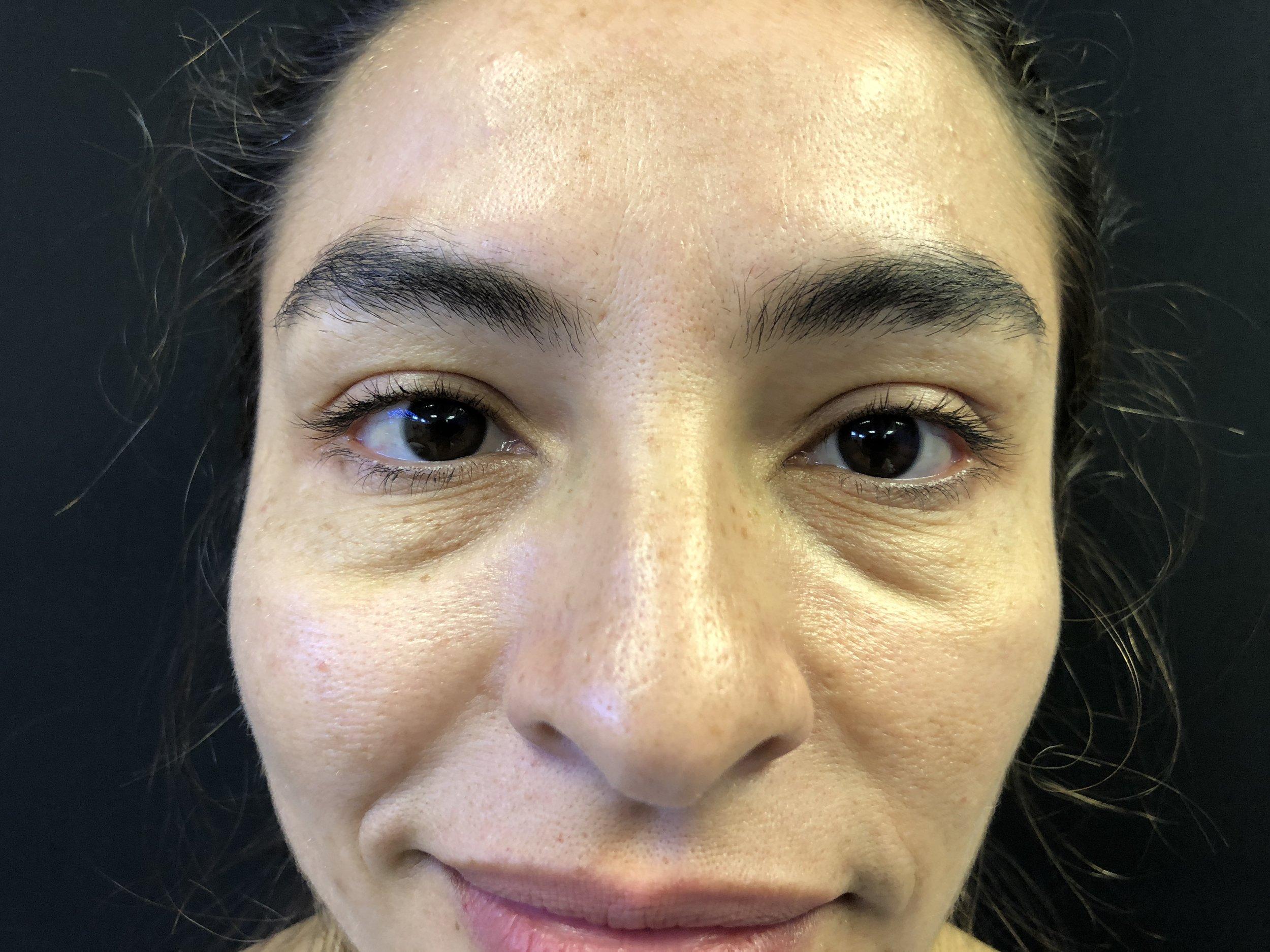 Lower Eyelid, Before