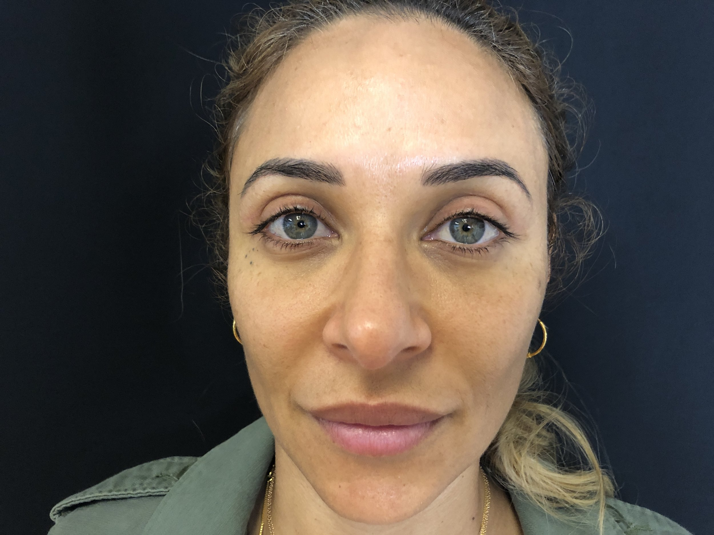 Upper Eyelid, Before