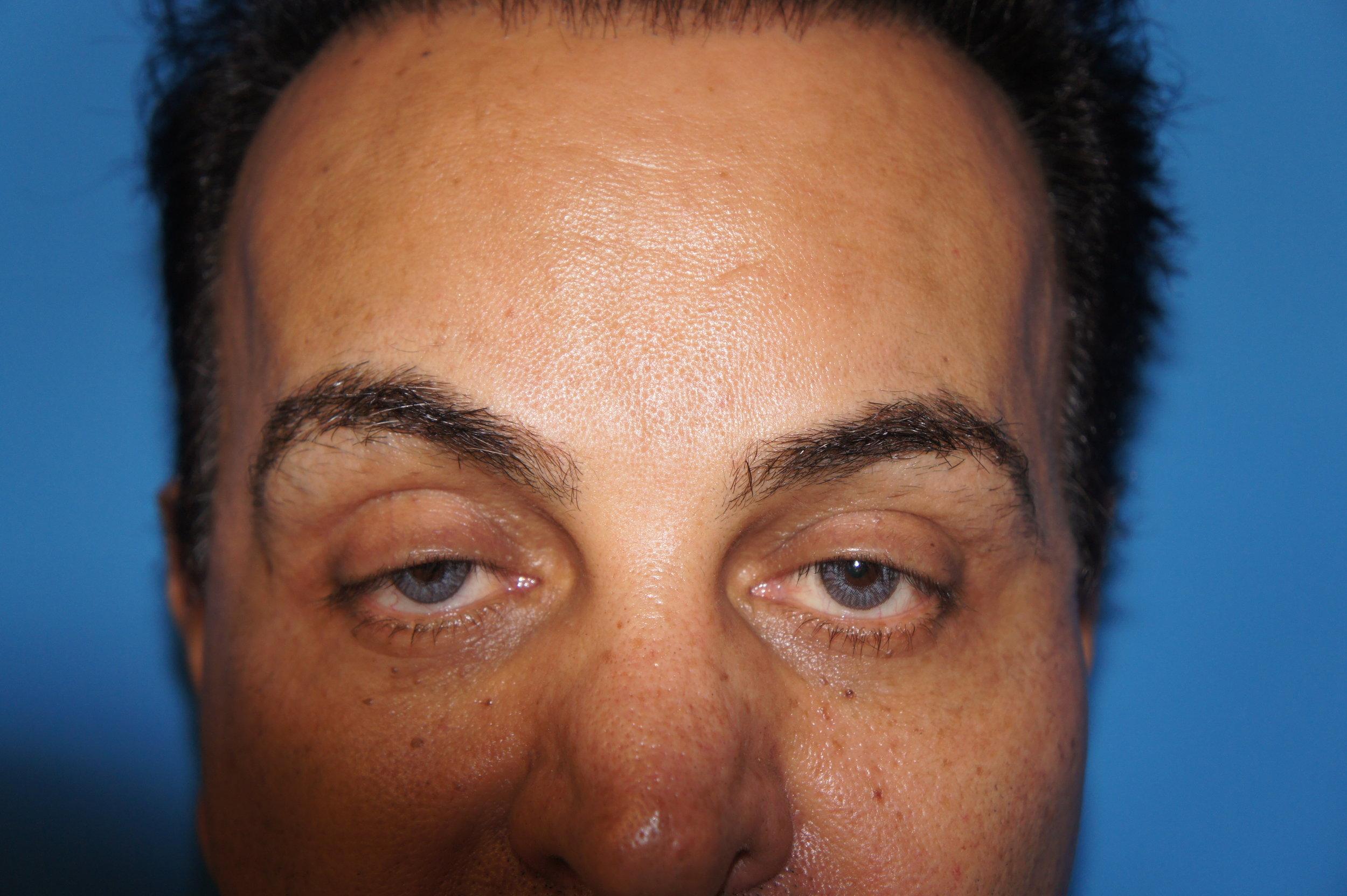 Upper Eyelids, Before Asymmetric Ptosis