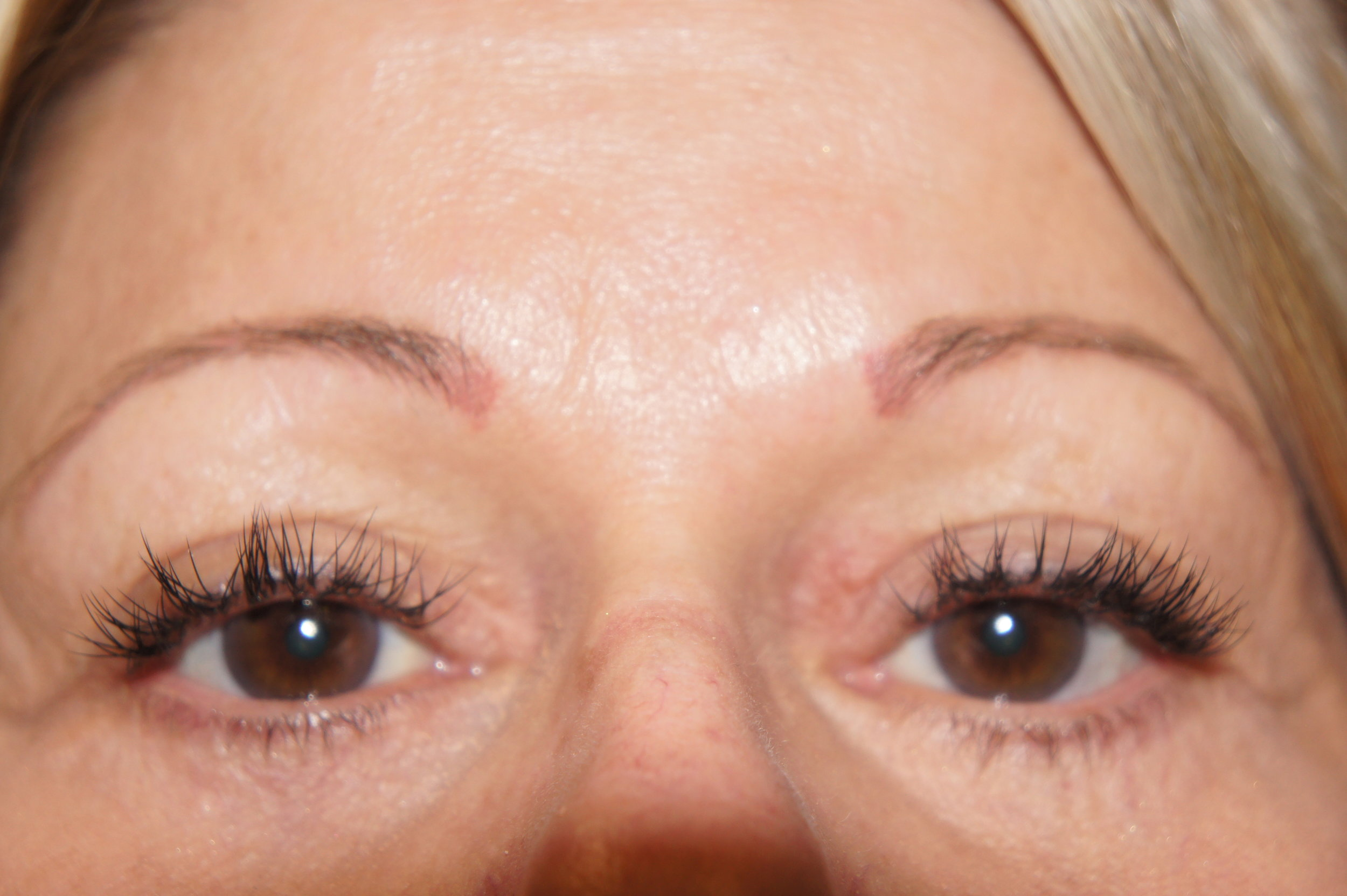Upper and Lower Eyelids, After