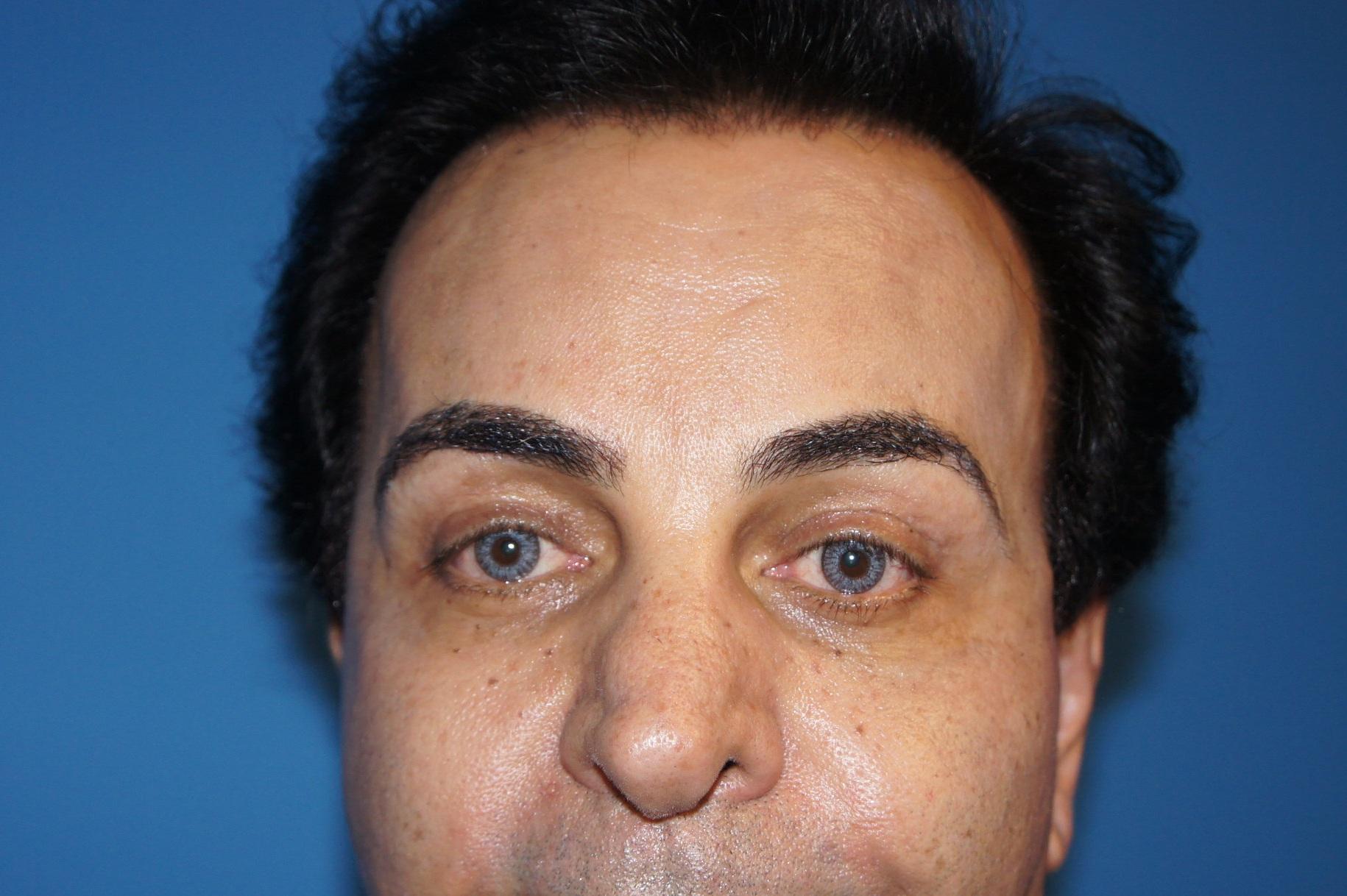 Upper Eyelid, After Ptosis Repair
