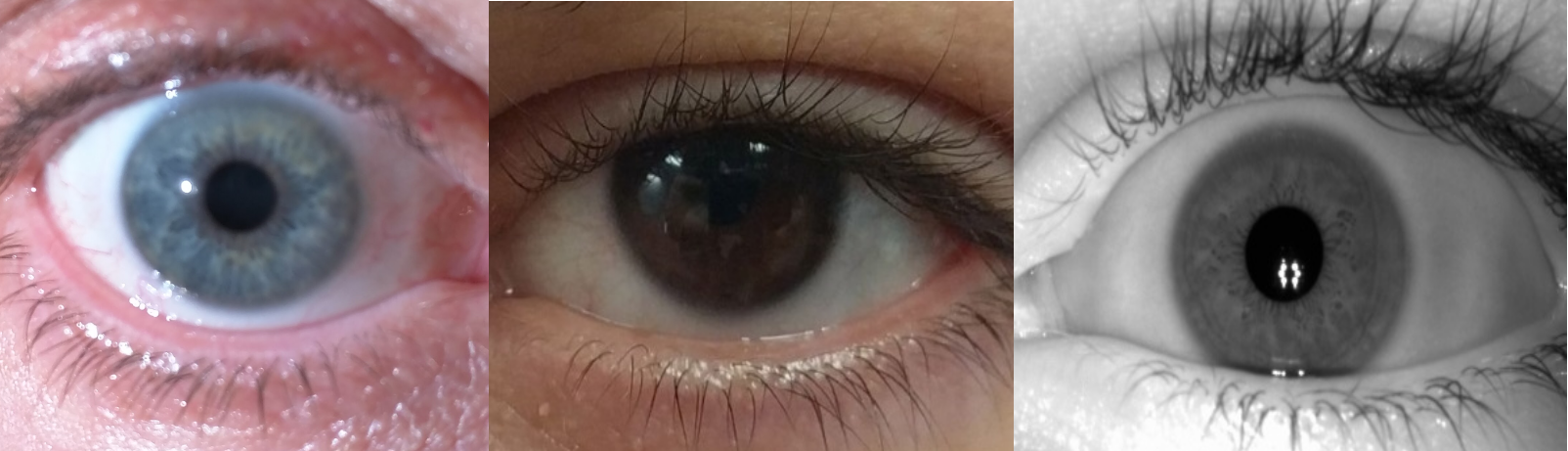 Light irises show a lot of detail. Dark eyes have less detail. An iris under NIR illumination shows great detail despite the lack of color.