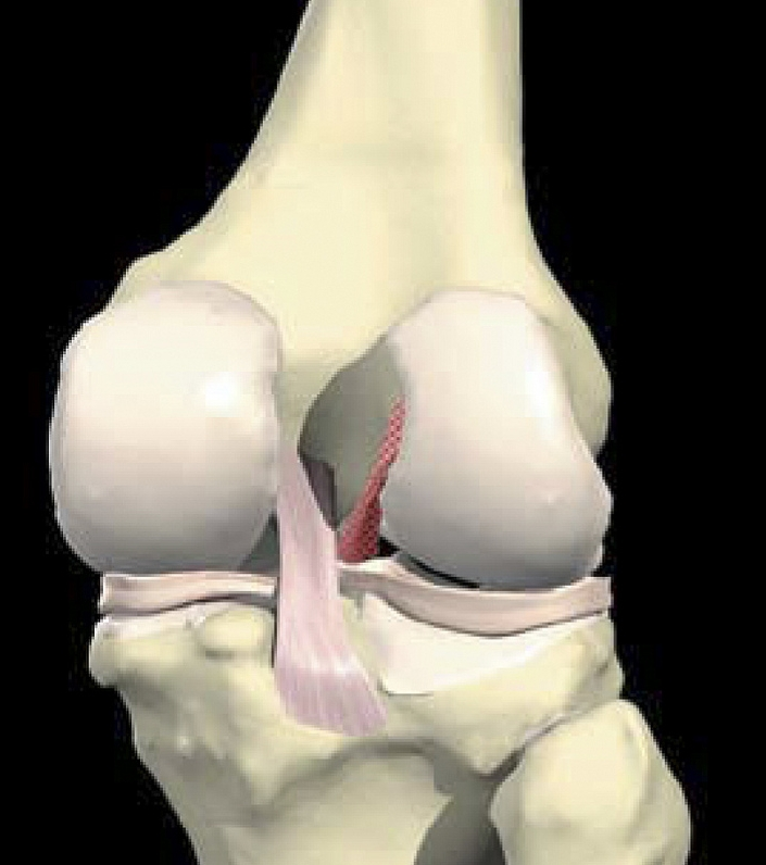 Anterior Cruciate Ligament Reconstruction (using hamstring graft)