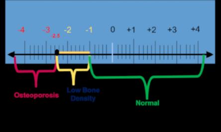 Bone  density graph.png