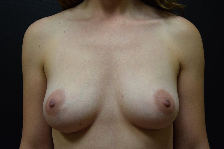 Right Nipple Sparing Mastectomy