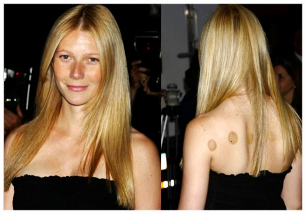 Gwyneth Paltrow not shy about showing her cupping marks!