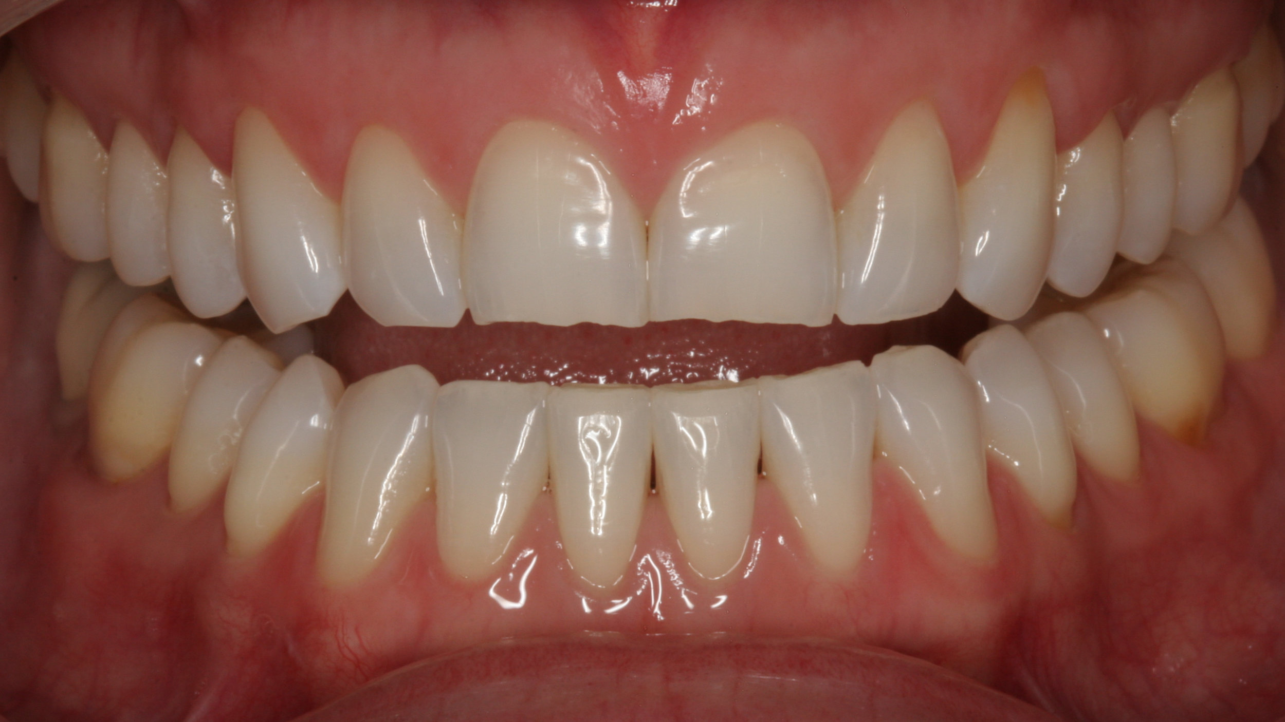 Worn teeth before dental restorations