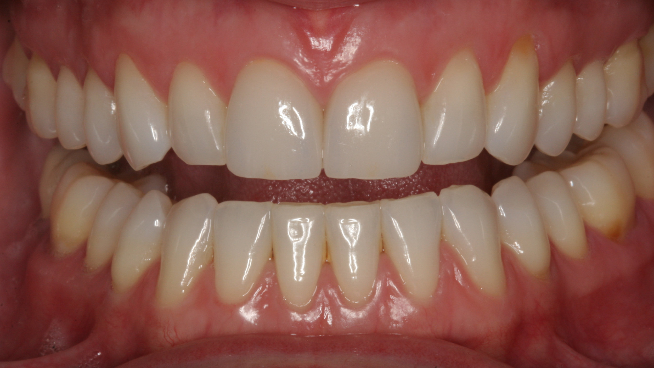 Two porcelain veneers to restore worn teeth by Dr. James Salazar
