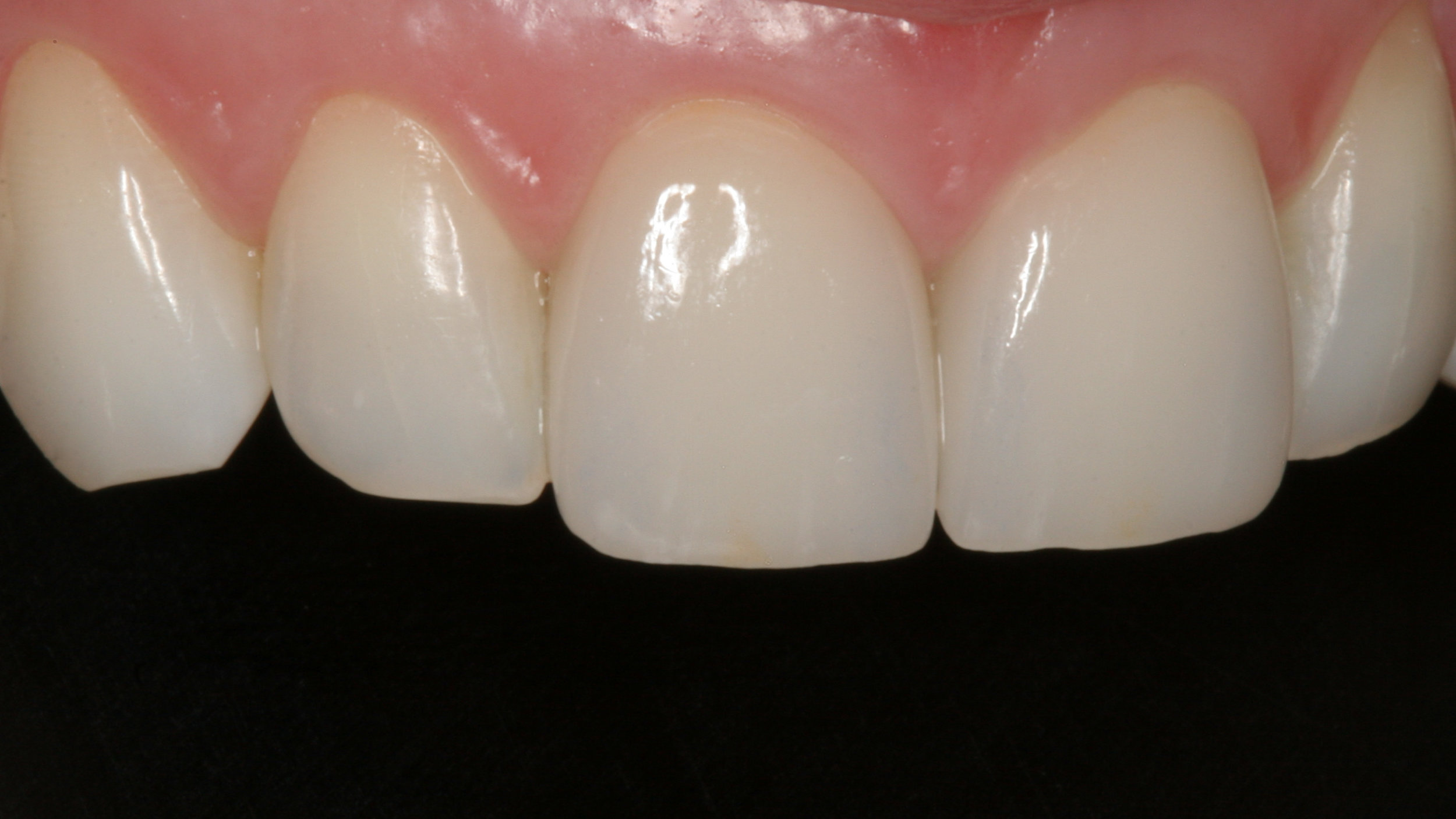 Two porcelain veneers by Dr. James Salazar