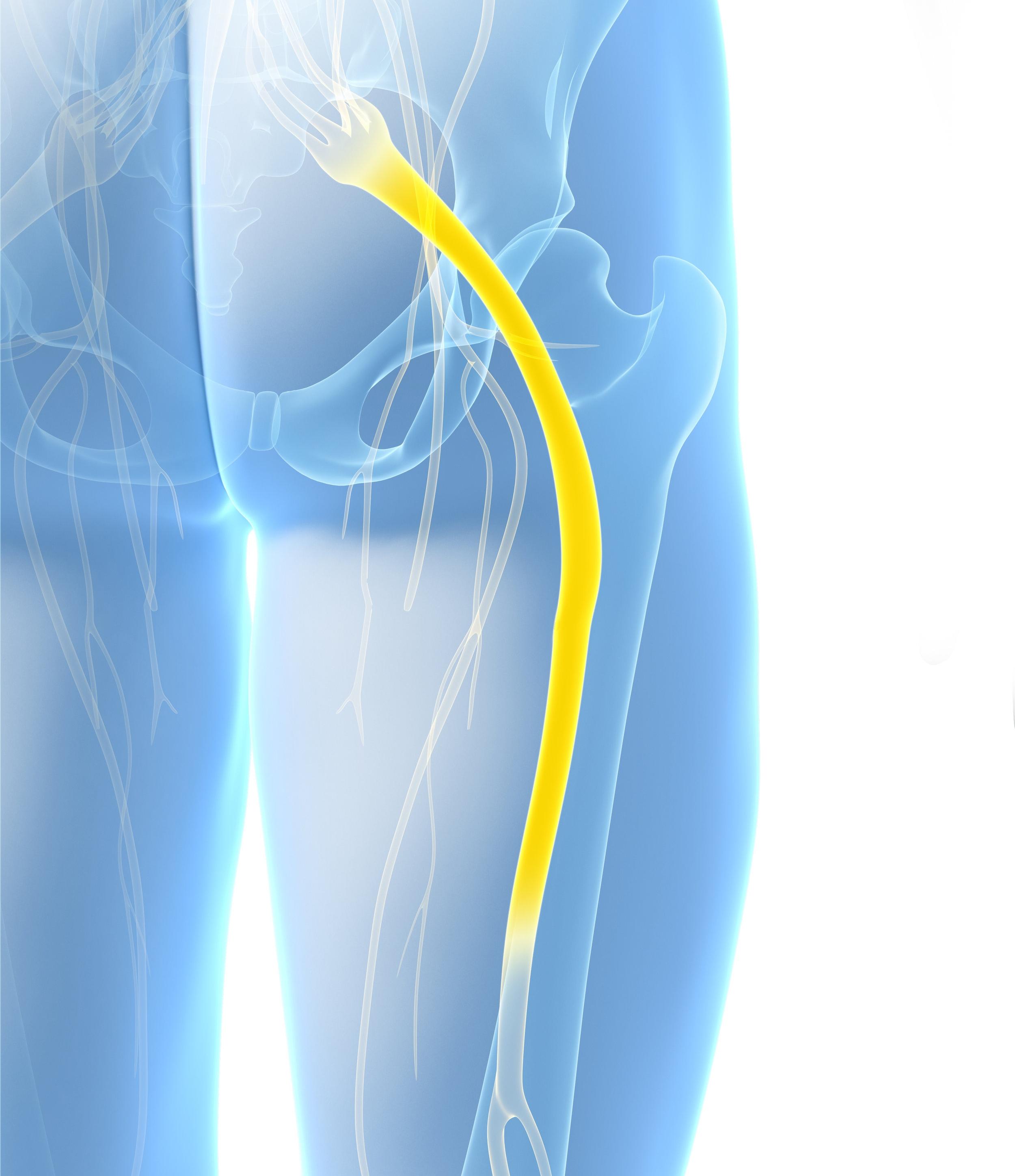 Sciatic Nerve Entrapment -