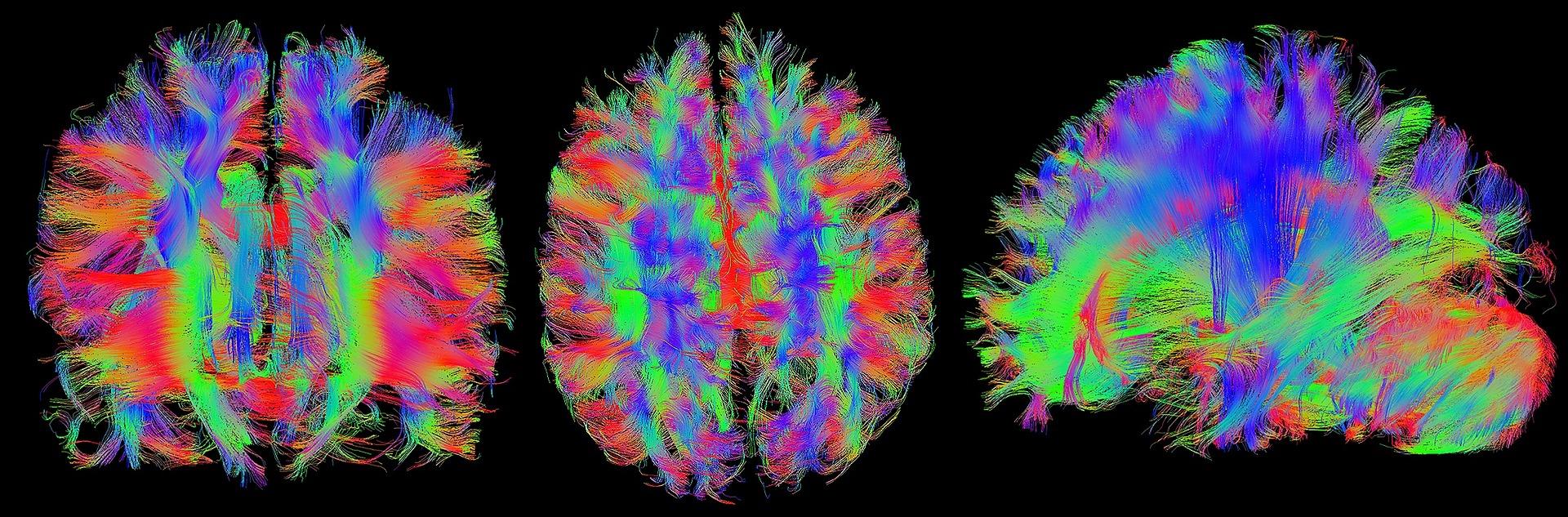 MRI brain.jpg
