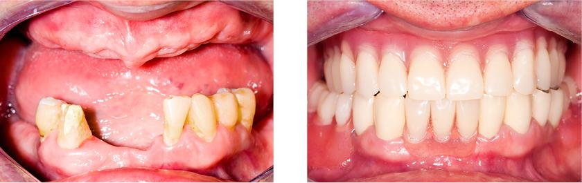 This patient is missing all his teeth in the upper jaw and all his teeth in the lower jaw was in poor condition. A conventional full denture was made for his upper jaw. As for the lower jaw, all his teeth were crowned and a removable partial denture made to fill the missing space.