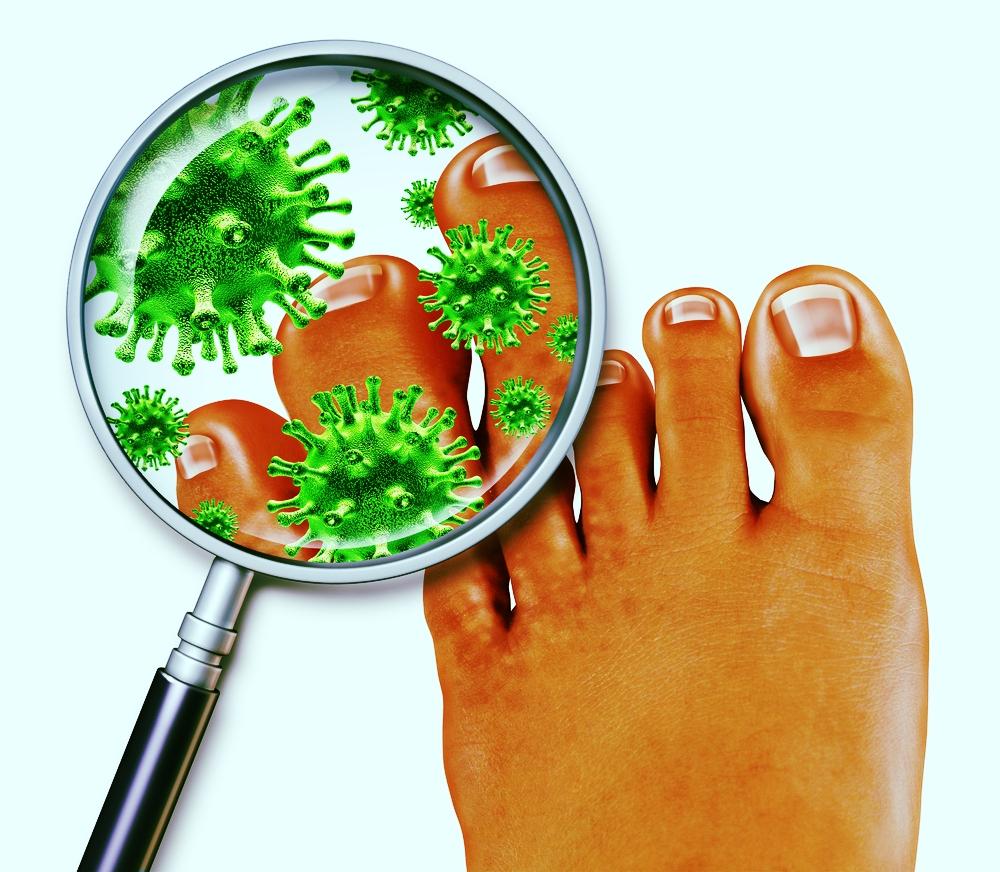 fungal ingrown toenails miami hialeah