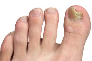 laser fungal toenails doctor miami hialeah fl