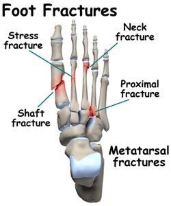 FOOT AND ANKLE FRACTURES miami hialeah podiatrist