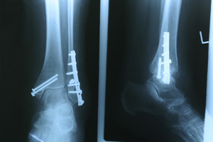 FOOT AND ANKLE FRACTURES miami hialeah doctor