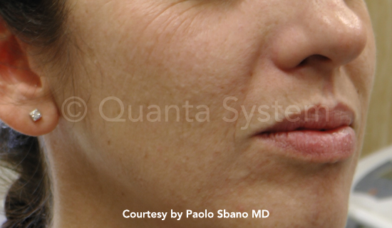 Younger Looking Skin - Vivace RF Microneedling , Tetra CO2 Laser