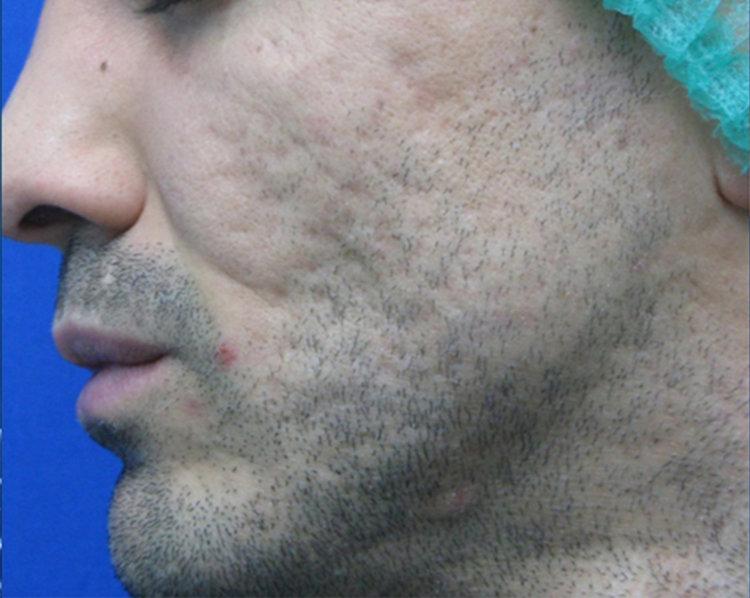 Acne Scar Minimizing Machine - Tetra CO2, Discovery Pico, EVO