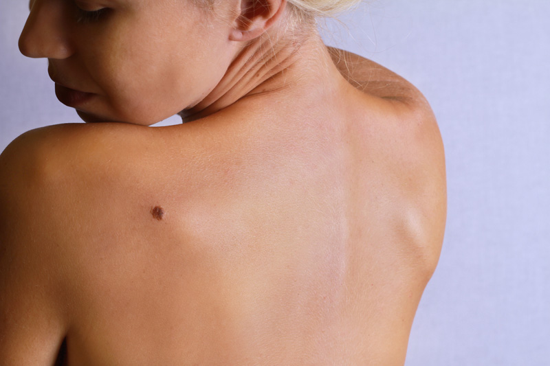 Skin Overview_Moles and Skin Tags.jpg