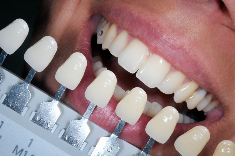 Smile_Whitening Detail.jpg