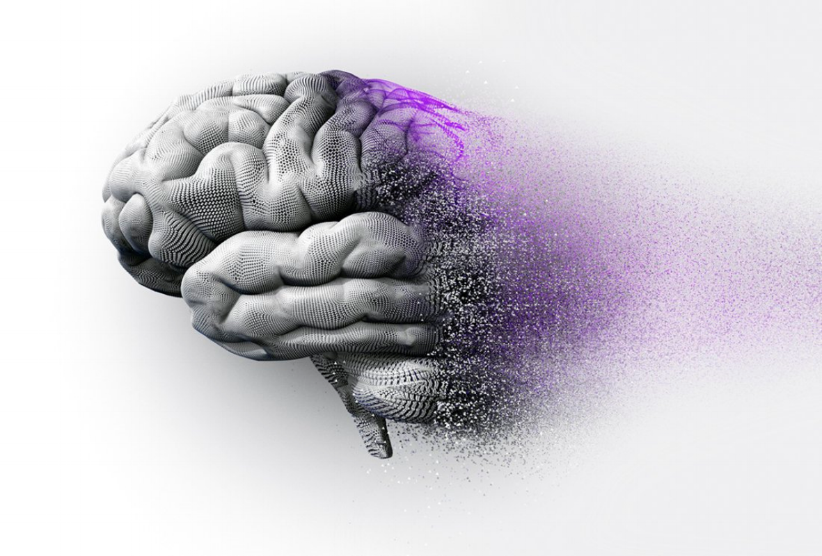 Dementia / Alzheimers