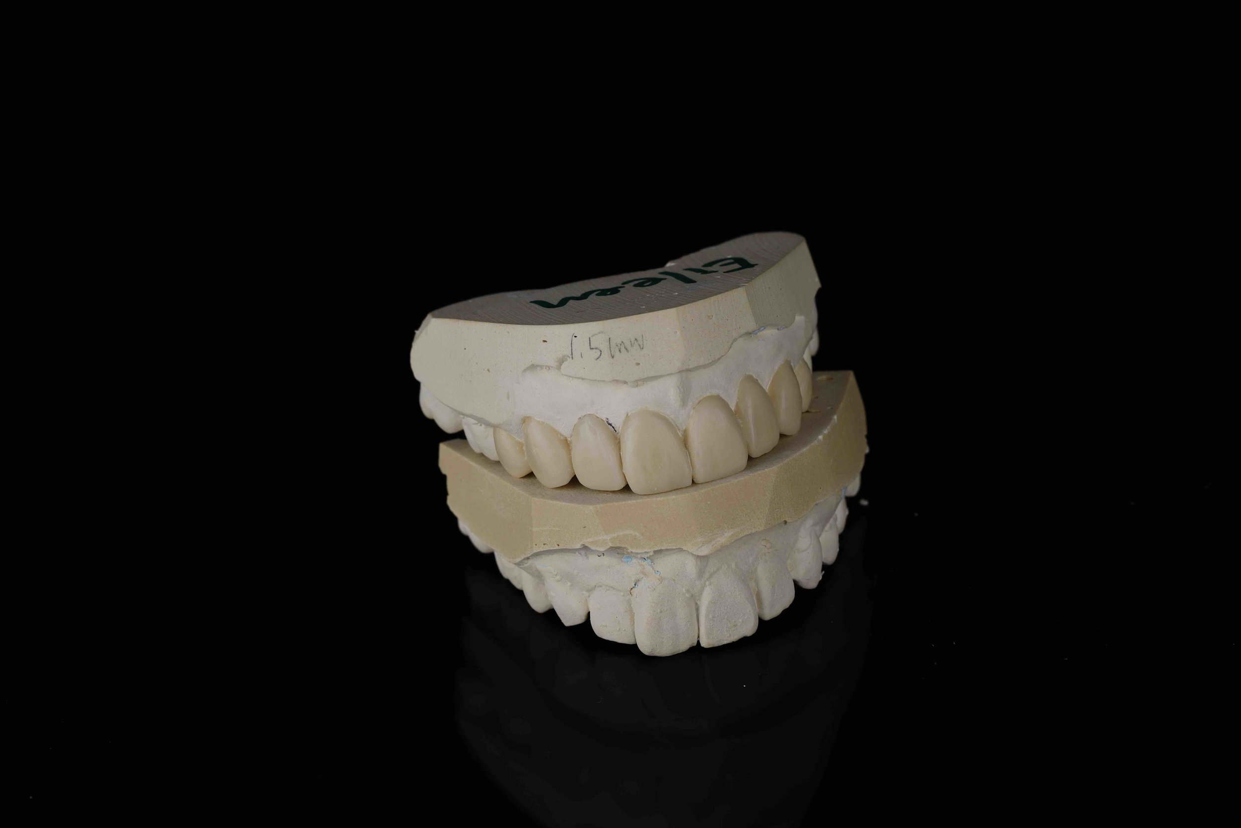 Moulds of my teethbefore (underneath)andafter. -