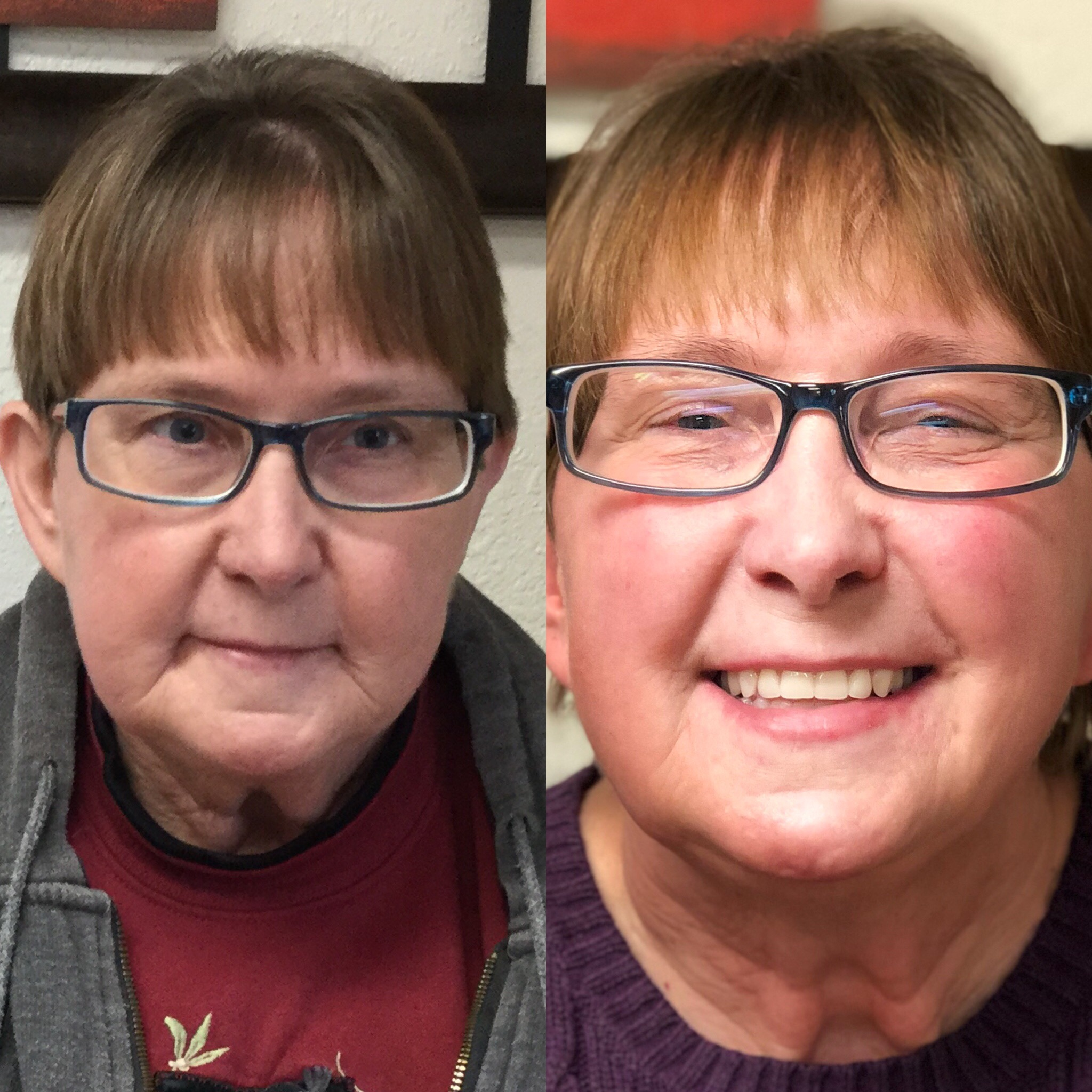 Dee Martin - Josh and John are the very best!!! They both have wonderful personalities!! They care about your dentures and make sure they fit perfectly. My new dentures gave me back my smile that I had always tried to hide with bad teeth. I can't thank Josh and John enough!!