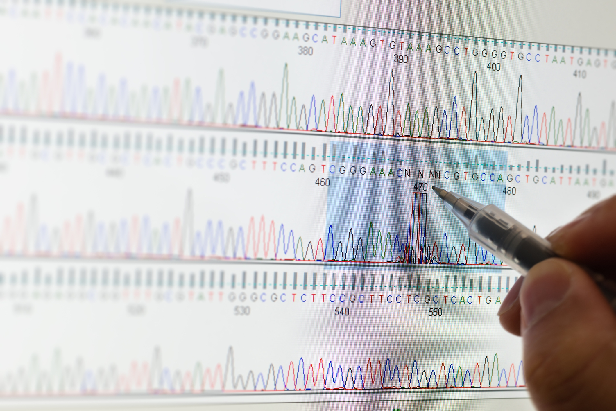 Breakthrough analysis of metabolic parameters