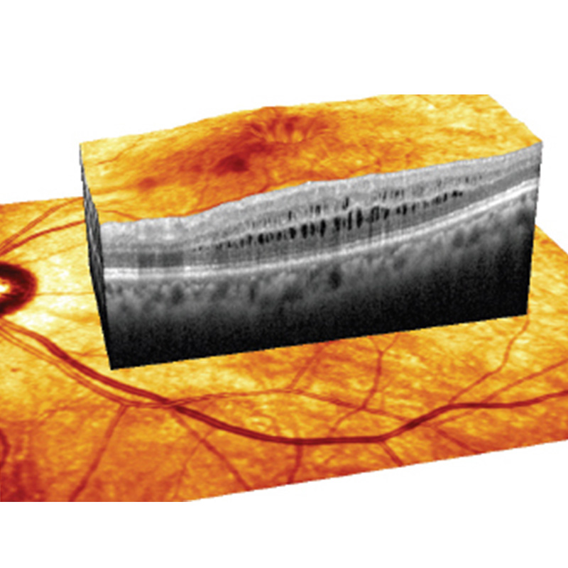 3D Retinal Photography (OCT)