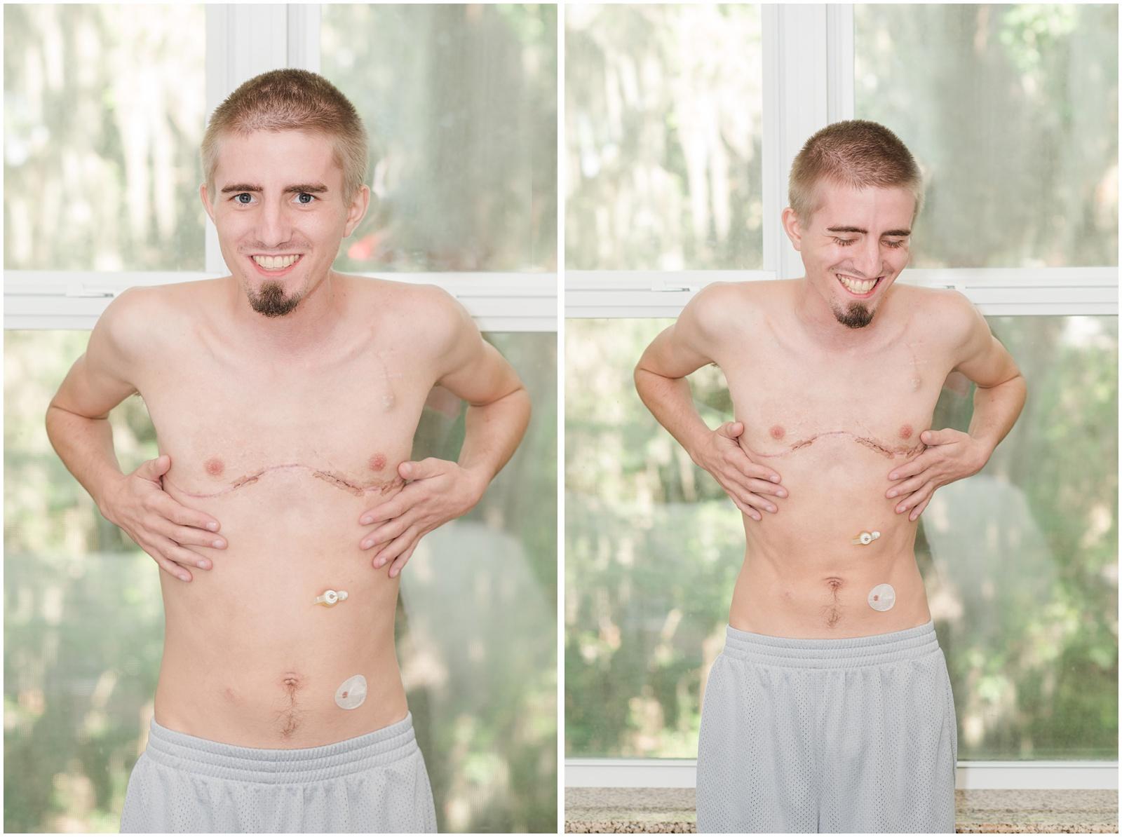 Lung_Transplant_Shands_Hospital_Cystic_Fibrosis_10.jpg